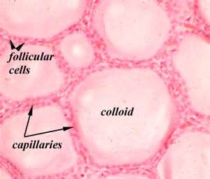 colloid and follicular cells in thyroid picture 11