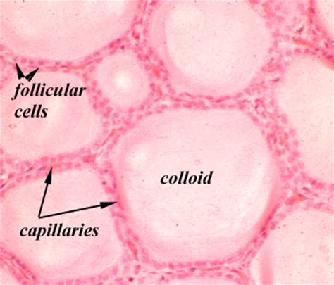 colloid and follicular cells in thyroid picture 8