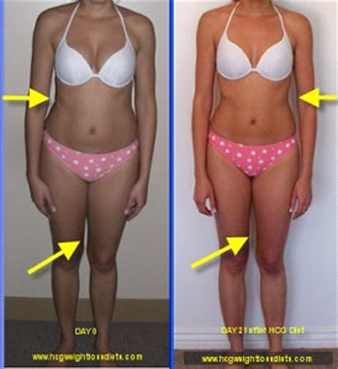 hcg and weight loss picture 2