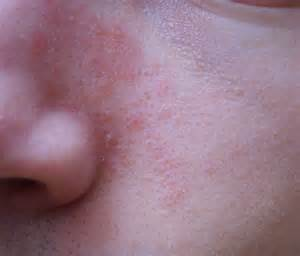 fungal skin rashes picture 1