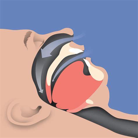 obstructive sleep apnea risk factors picture 7
