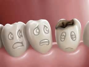 cavaties teeth picture 10