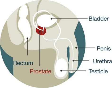prostate diagram picture 6