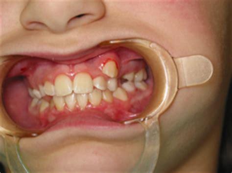 cuspid teeth picture 5