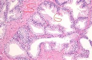 symptoms of prostatitis picture 1