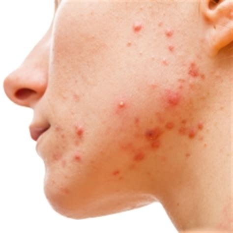 acne health submit url picture 10