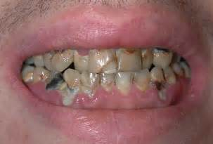 decayed teeth picture 1