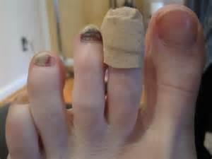 toenails picture 14