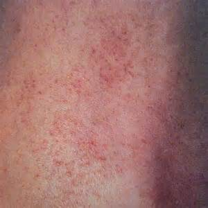 is eczema bacterial picture 10