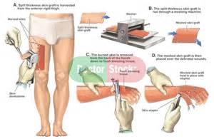 criteria and skin graft and burn picture 10