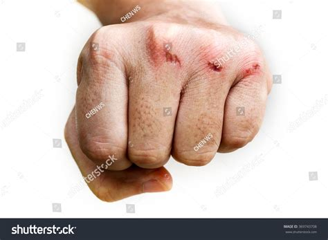 skin infection on knuckle picture 11