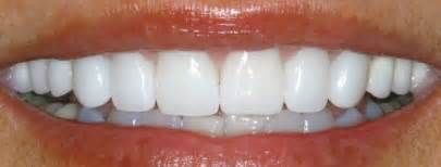 south jersey teeth whitening picture 14