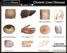 chronic liver disease skin name picture 2
