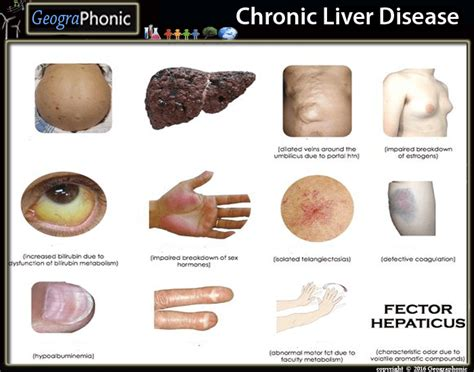chronic liver disease skin disorder name picture 1