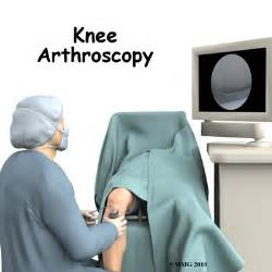 arthroscopy of knee joint picture 2