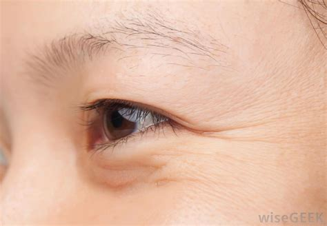 aging eyes picture 10