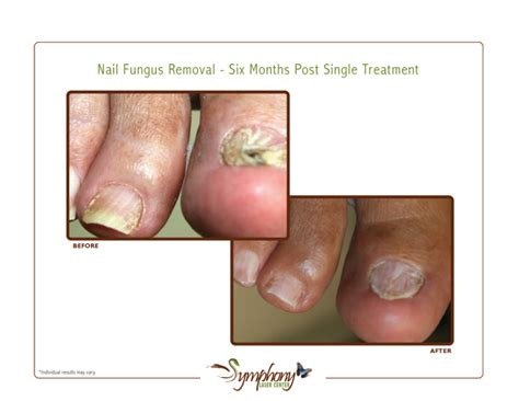 pinpoint laser nail fungus removal virginia picture 4