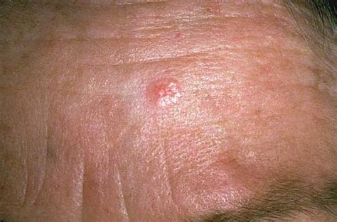 warts on skin picture 7