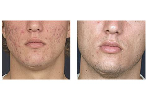 co2 laser for acne scars picture 6