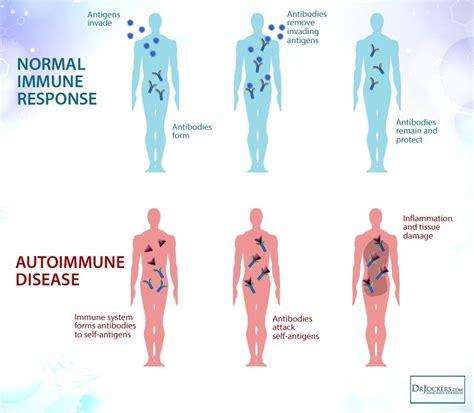 auto immune disease of skin picture 3