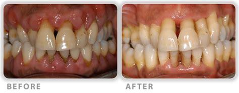 dental implants for diabetics picture 14