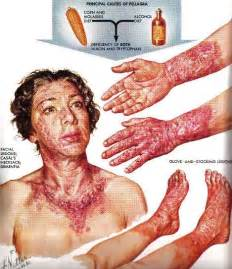 vitamin a toxicity and skin conditions picture 7