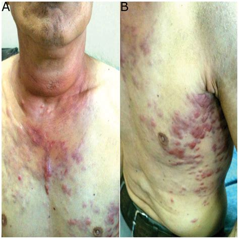 anaplastic thyroid cancer picture 17