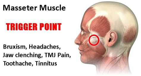 magnetic pain relief picture 10