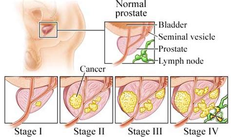 what age does prostate cancer occur picture 4