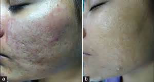 scupltra and subscision treatment for acne scars picture 4