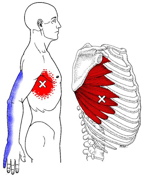 Muscle pain in rib cage picture 10