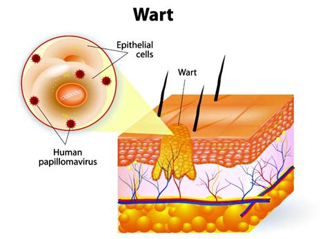 any cure for verinal warts picture 17