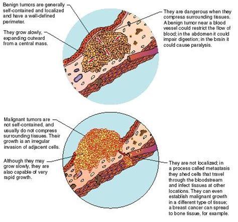 colon tumor names picture 17