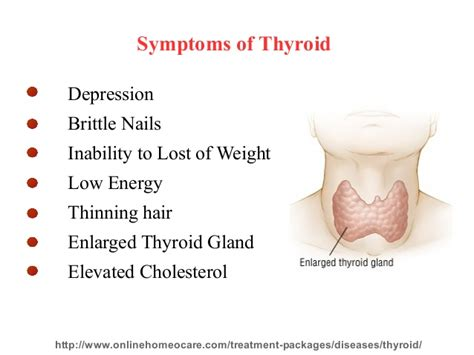homeopathy for thyroid picture 1