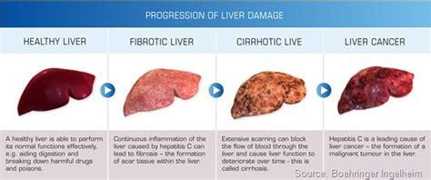 fatty liver symptomes picture 1