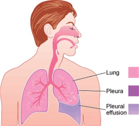 natural remedies to reduce pleural fluid picture 5