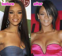 surgical breast enhancement picture 9