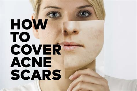 cover your acne scars picture 15