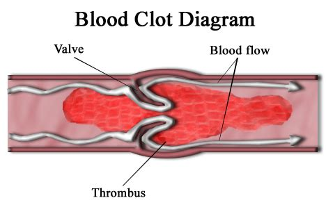 medication to increase blood flow to legs in picture 2