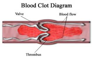 Blood flow after miscarriage picture 2