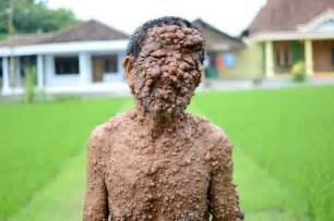 nf skin disorder picture 5