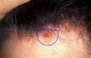 head acne as a symptom of cancer picture 7