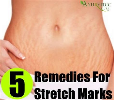 avitcid treatment for stretch marks picture 17