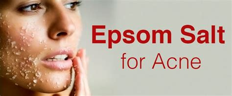 acne spot treatment with epsom salts picture 1