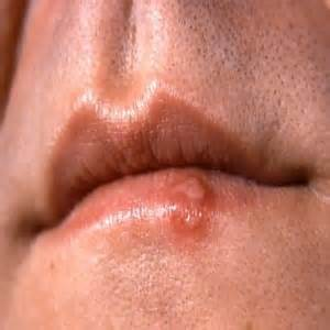 pictures of genital warts in the mouth picture 6