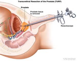 Prostate diagnosis picture 13
