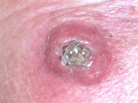 prognisis in squamous skin cell carcinoma picture 11
