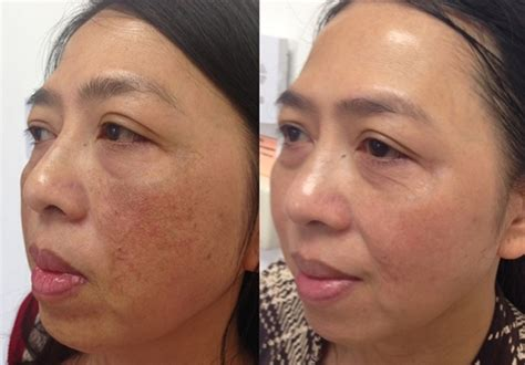aging botox treatment picture 3