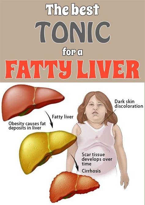 fatty liver and dandelion picture 5