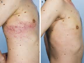 symptoms of herpes zoster picture 5